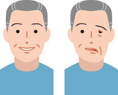 什麼是顏面神經麻痺、貝爾氏麻痺?