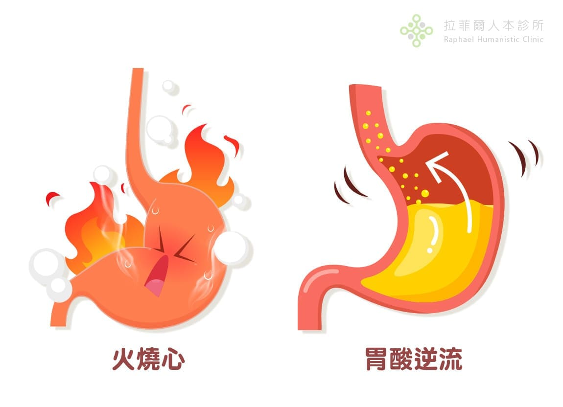 胃食道逆流 非典型症狀 胃食道逆流典型症狀:胸口灼熱(火燒心)、胃酸逆流