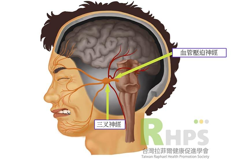 什麼是三叉神經痛?